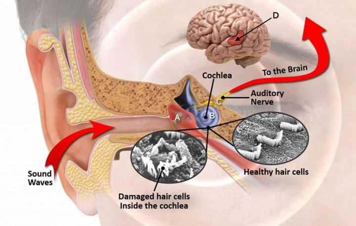 Mecanism tinitus